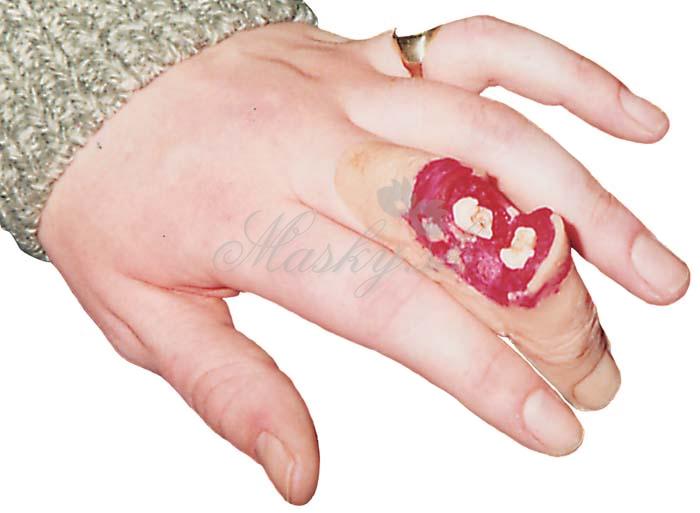 Zlomený prst 3083